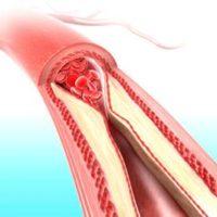 Dislipidemia si riscurile cardiovasculare
